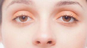 【銀座】おすすめクリニック5選!目の下のたるみ治療