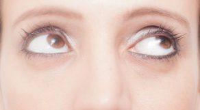 目の下のたるみを治したい!東京のオススメ皮膚科5選