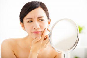 ニキビ跡は皮膚科でしか治せない!?絶対治したい方必見!抑えておくべきクリニックTOP3
