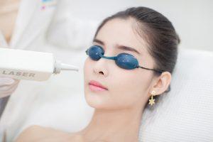 レーザー治療で長年悩んできたニキビ肌から開放!?